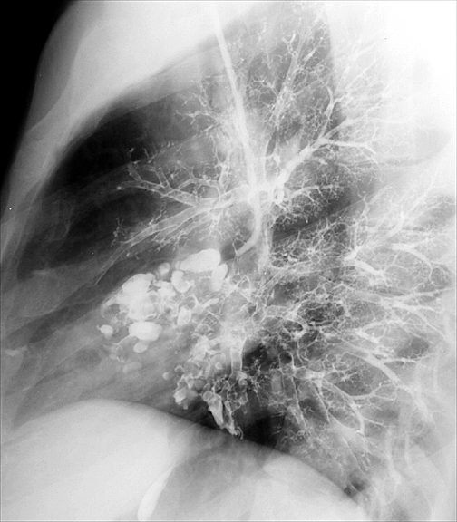 Bronchiectasis