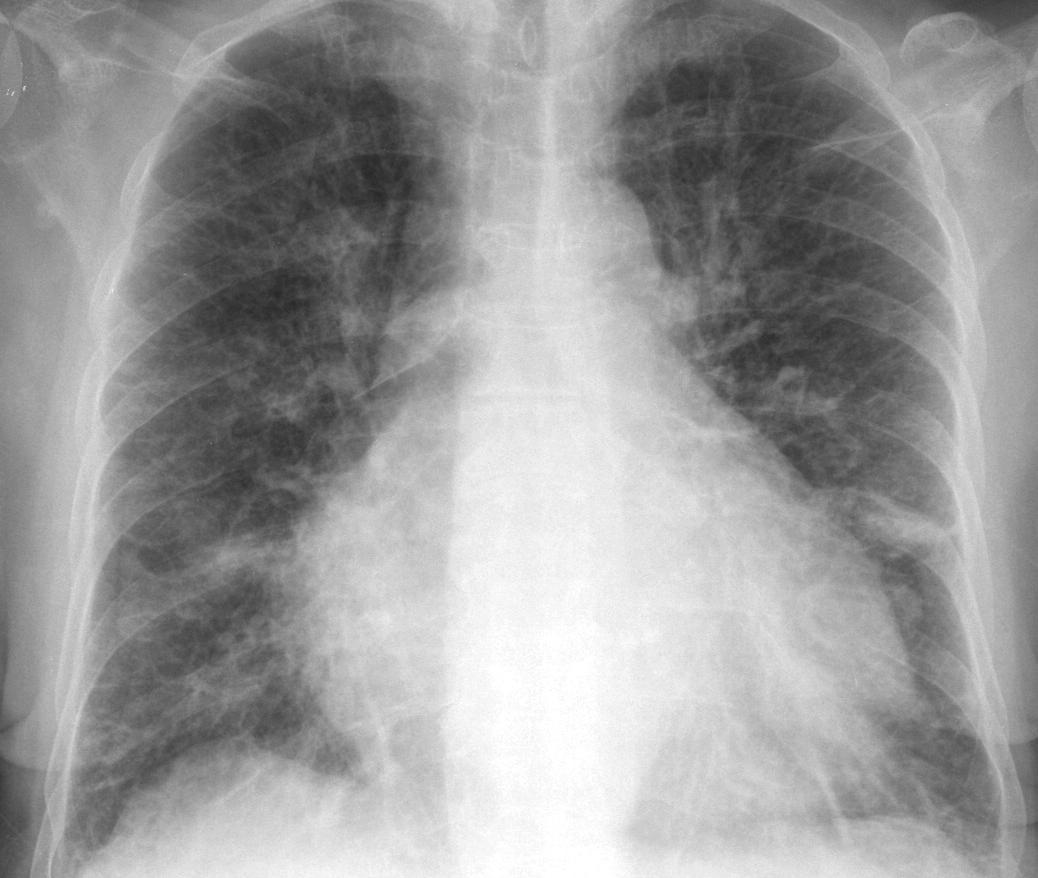 Chest x-ray Atlas