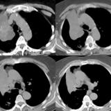 RUL Collapse Case 2 CT 4in1