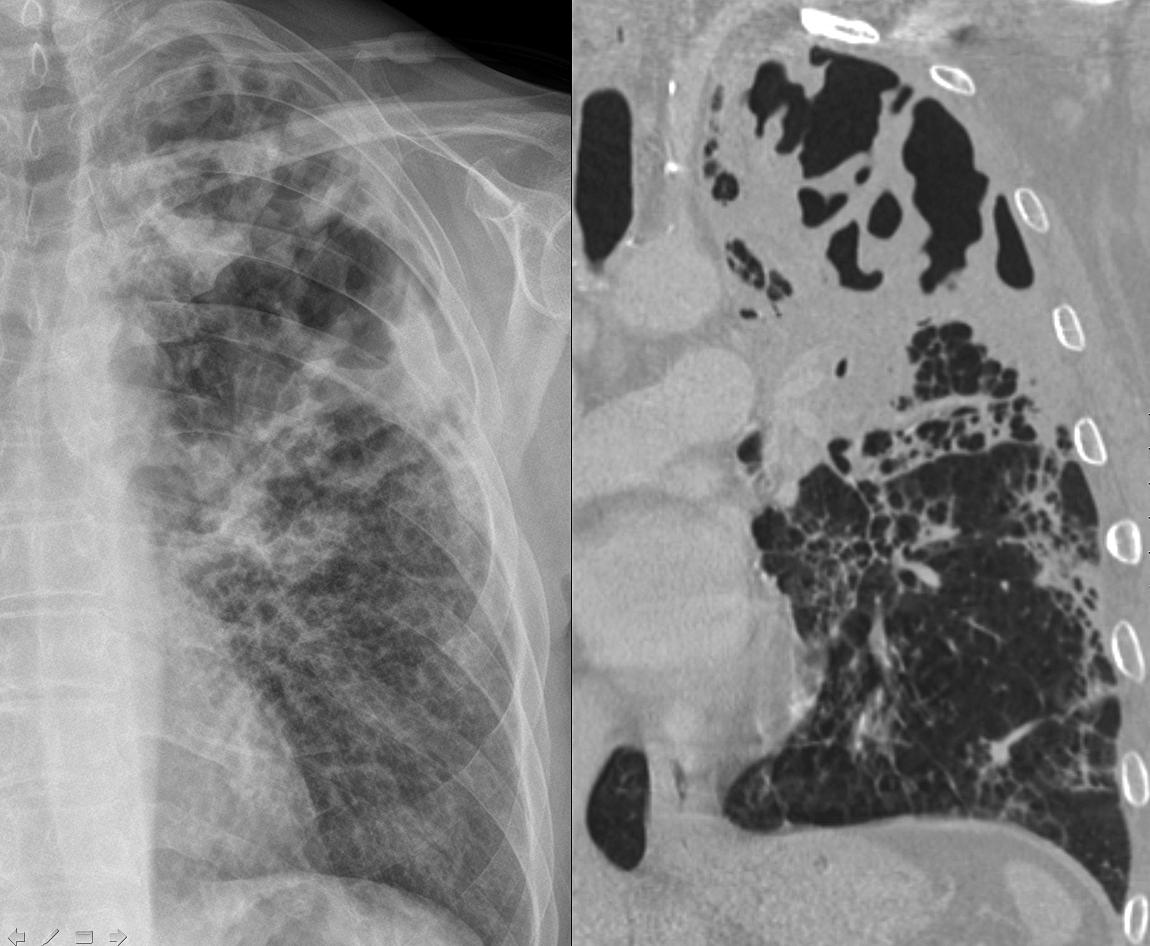 http://chestatlas.com/gallery/d/3244-2/necrotizing_pneumonia.jpg