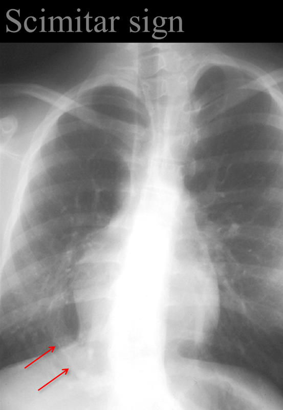 Scimitar sign Anomalous venus return below the diaphragm (hypoplastic Rt lung/venolobar syndrome)
