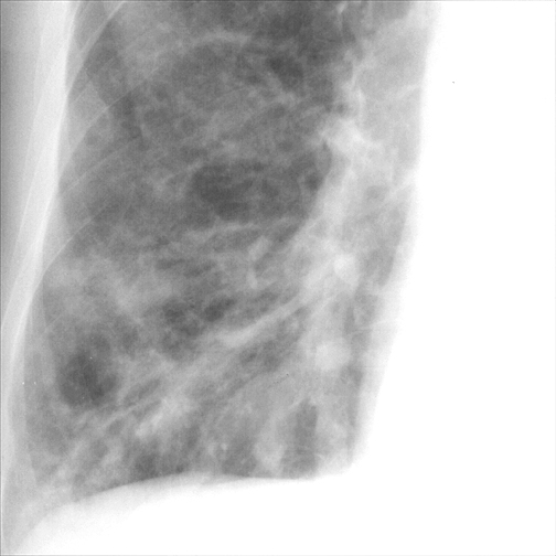 Bronchiectasis Case 1 PA c/u