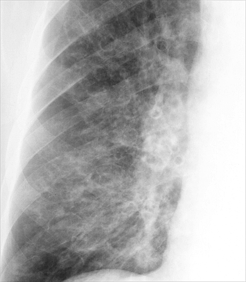 Bronchiectasis Case 2 PA c/u