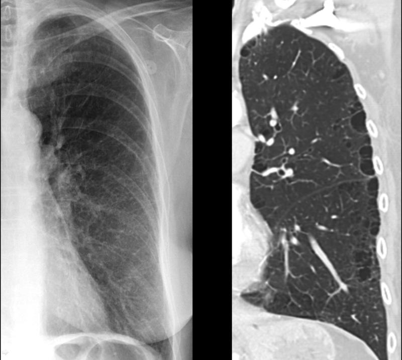 Subtle paraseptal emphysema